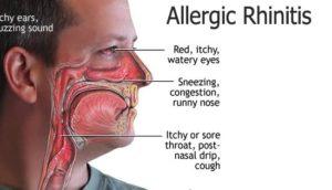 nasal allergy - allergic rhinitis